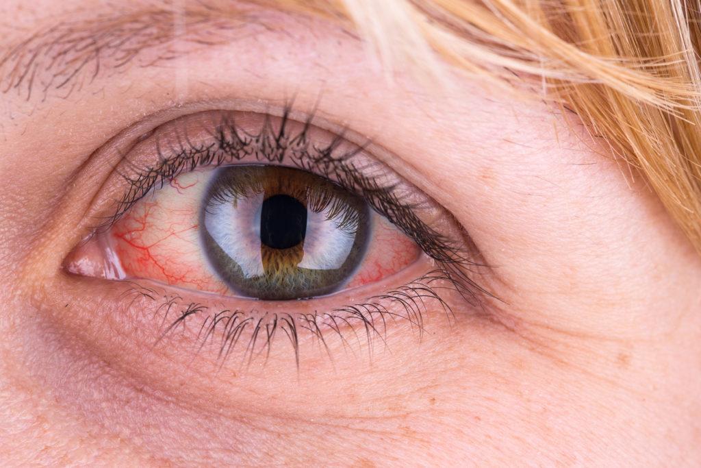 Pourquoi la weed rend-elle les yeux rouges ? - WeedSeedShop Blog